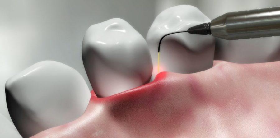 Parodontite e laser